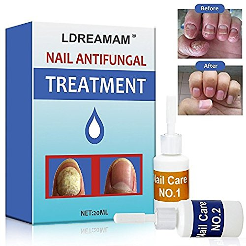 Fungus Stop,Nail Fungus Treatment,Anti fungal Nail Solution,Nail Care Treatment of Anti-Fungal Solution,Effective Against Nail Fungus,Restores Toenail Fungus,Clear by LDREAMAM