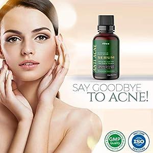 Feba Anti Acne Intensive Serum for Face & Body Clears Acne & Dark Spots – 15ml
