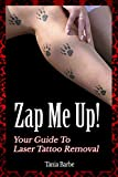 Zap Me Up! - Your Guide to Laser Tattoo Removal