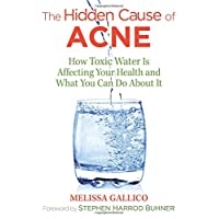 The Hidden Cause of Acne: How Toxic Water Is Affecting Your Health and What You...