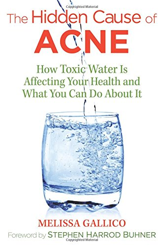 The Hidden Cause of Acne: How Toxic