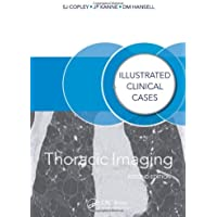 Thoracic Imaging: Illustrated Clinical Cases, Second Edition