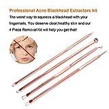 Blackhead Remover Kit,Comedone Extractor