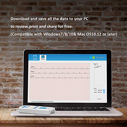 EMAY Portable EKG (PC Software Compatible With Both Windows