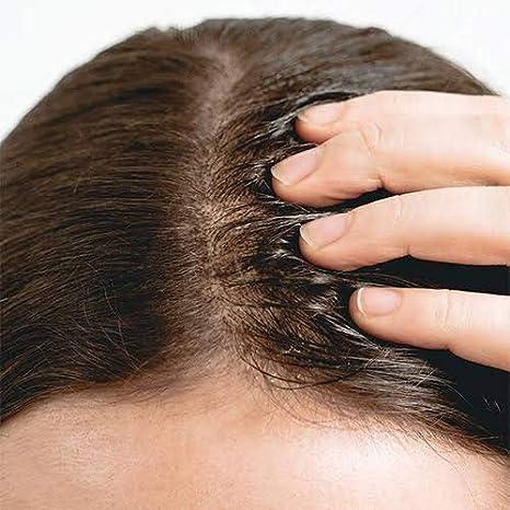 The Ordinary Multi Peptide Serum For Hair Density 60ml 2oz Amazon Ca Beauty