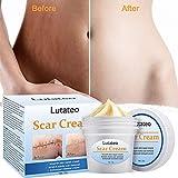 Scar Cream, Scar Treatment, Stretch Mark