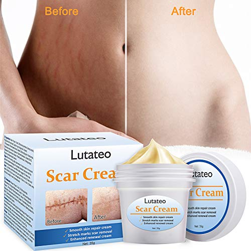 Buy cream for stretch marks and scars
