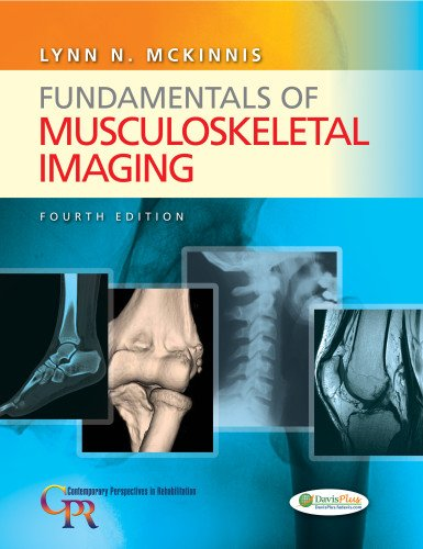 803638213 - Fundamentals of Musculoskeletal Imaging (Contemporary Perspectives in Rehabilitation)