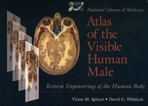 National Library of Medicine Atlas of the Visible Human Male: Reverse Engineering of the Human Body by Victor M. Spitzer (1997-06-13)