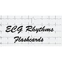 ECG Rhythms Flashcards