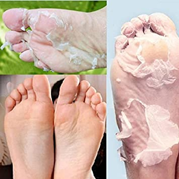 how to remove dead skin from feet