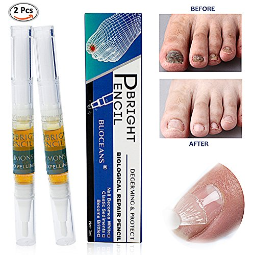 Fungus Stop Fungus Treatment Anti Fungus Nail Treatment Effective Against Nail Fungus Anti fungal Nail Solution ToenailsampFingernails SolutionRemoves Yellow from Infected Finger amp Toe Nails2pcs