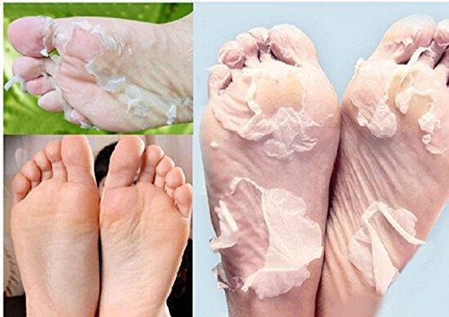 czluo-new-hot-1-pair-milk-bamboo-vinegar-remove-dead-skin-foot-skin-smooth-exfoliating-feet-mask-foo