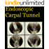 Endoscopic Carpal Tunnel Release handout (Surgery of the Hand, Wrist and Upper Extremity Book 1)