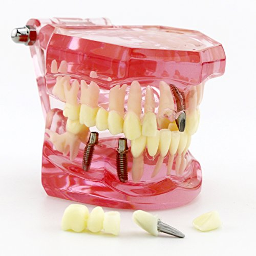 Dentalmall 1 Pc Dental Implant Study Analysis Demonstration Teeth Model #2001 with Restoration (Teeth Demonstration Model)