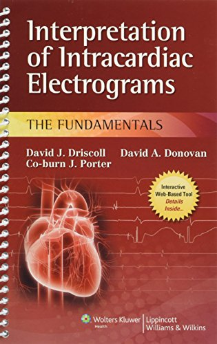 Interpretation of Intracardiac Electrograms: The - Md Spc