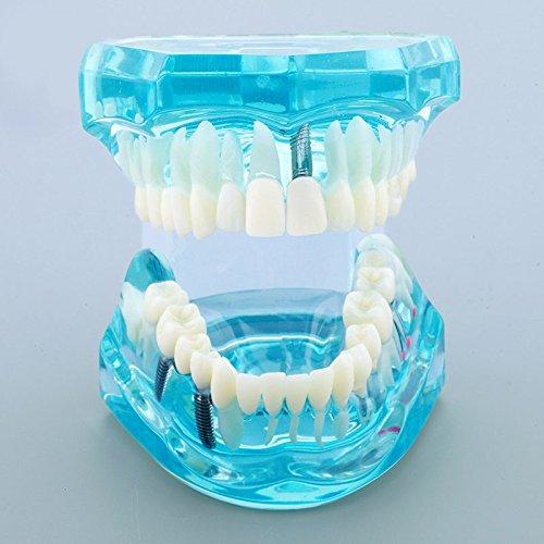 [해외]pwhite 치과 임 플 란 트 질병 치아 모델 치과 의사 표준 병리학 이동식 치아 교육 도구 / Pwhite Dental Implant Disease Teeth Model Dentist Standard Pathological Removable Tooth Teaching Tools