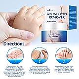 Skin Tag Remover, Warts & Mole Remover Cream- Best