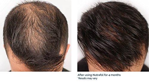 Nutrafol Men Advanced Thinning Hair Amp Hair Loss Supplement