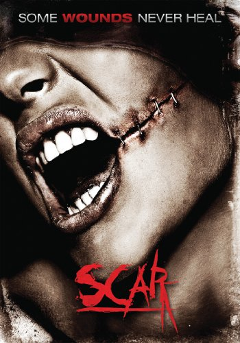Scar (The Best Pimple Cream)
