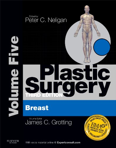 Plastic Surgery: Volume 5: Breast (Expert Consult Online and Print), 3e