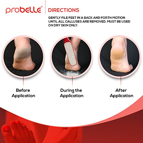 Probelle 2-Sided Hypoallergenic Nickel Foot File for Callus Trimming and Callus Removal, Red, 4 Ounce by Probelle (Image #1)