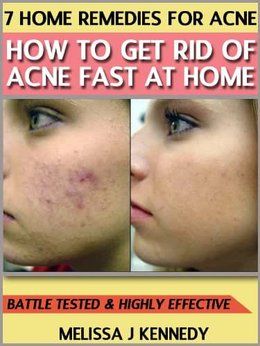 7 Home Remedies for Acne - How to Get Rid of acne Fast at Home