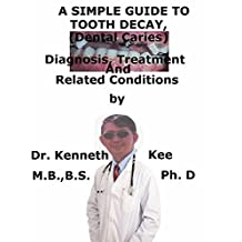 A  Simple  Guide  To  Tooth Decay, (Dental Caries)  Diagnosis, Treatment  And  Related Conditions (A Simple Guide to Medical Conditions)