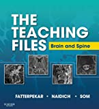 The Teaching Files: Brain and Spine Imaging