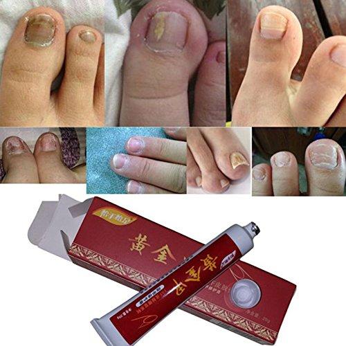 Yiwa Herbal Anti Fungal Nail Repair Cream Emulsifiable Paste Toe Nail Fungus Treatment Anti Infection Paronychia Onychomycosis