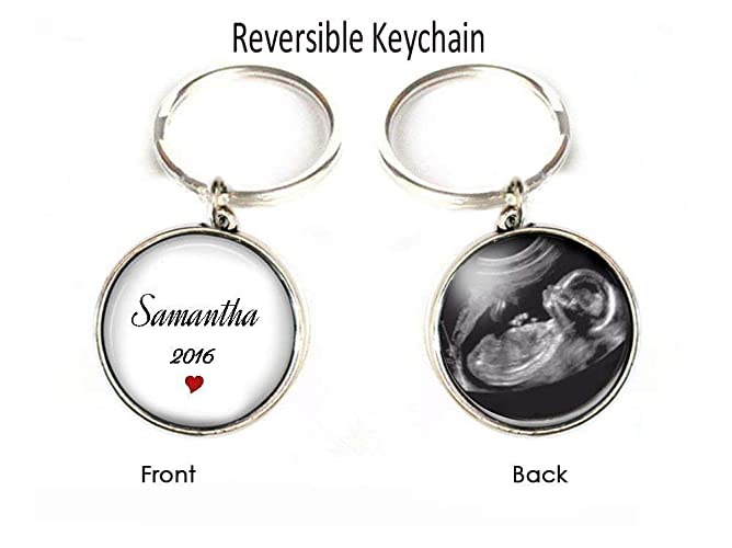 Amazon com: Sonogram Keychain, Ultrasound Keychain, Double