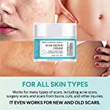 Scar Removal Cream, Scar Cream For Old Scars