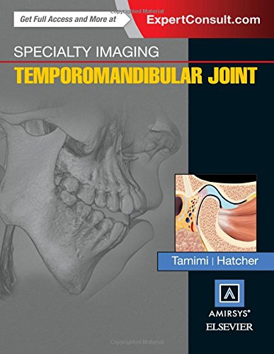 specialty-imaging-temporomandibular-joint-1e