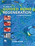 20 Years of Guided Bone Regeneration in Implant