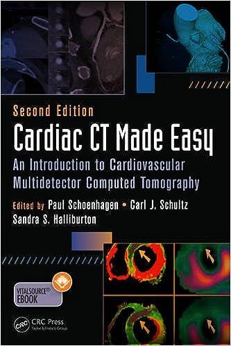 Cardiac Ct Made Easy An Introduction To Cardiovascular
