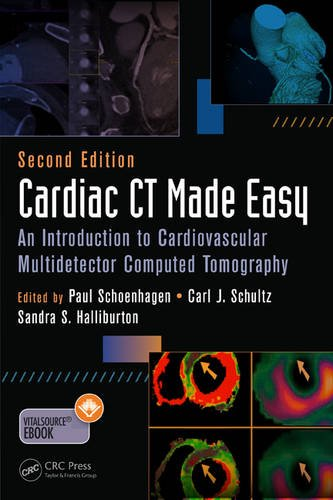 Pdf Medical Books Cardiac CT Made Easy: An Introduction to Cardiovascular Multidetector Computed Tomography, Second Edition (Volume 1)