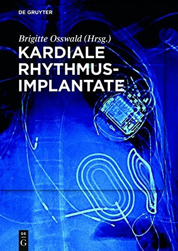 Amazon.com: Kardiale Rhythmusimplantate: Manual zum Zertifikat der ...