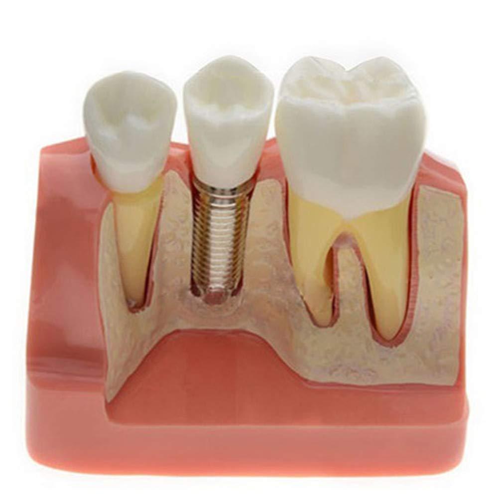 Analysis Model for Dental Implant Crown Bridge Demonstration Teeth Model for Education M2017