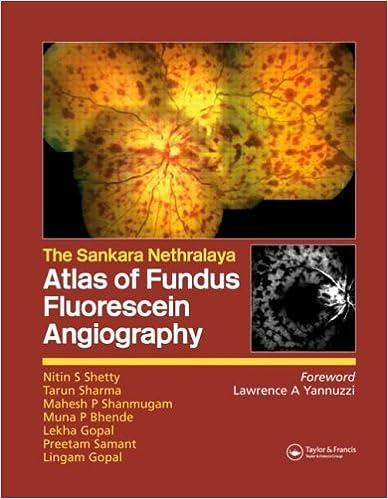 The Sankara Nethralaya Atlas of Fundus Fluorescein Angiography