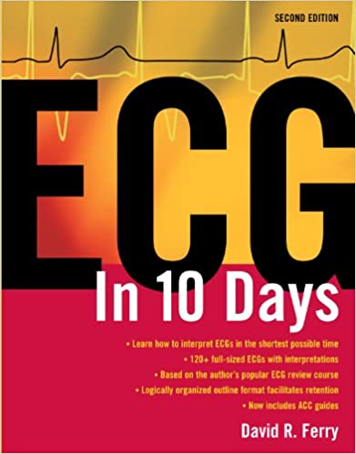 Amazon ecg in ten days second edition ebook david r ferry amazon ecg in ten days second edition ebook david r ferry kindle store fandeluxe Image collections