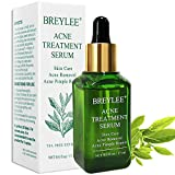 Acne Serums - Best Reviews Guide