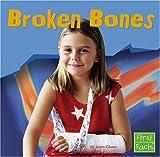 Broken Bones, Jason Glaser, 0736863303