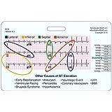 STEMI 12 Lead Tool Horizontal Reference Badge ID Card (1 Card)