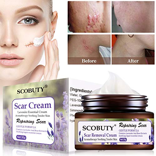 Scar Removal Cream, Acne Scar Remover Cream, Stretch Marks Relief and Old Scars Repair, Maternity Skin Care, Natural Herbal Extracts, For Surgical, Traumatic, Burns, Cuts, Acne and C Section Scars (Herbal Stretch Mark Cream)