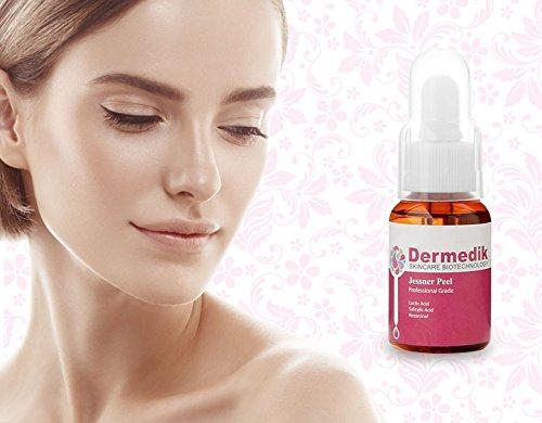 Jessner 30% Chemical Peel Acid Face Body Wrinkle Acne Pores 30ml