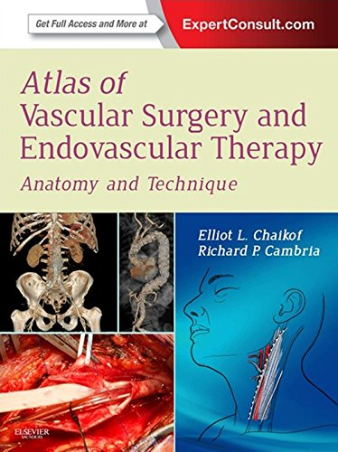 Atlas of Vascular Surgery and Endovascular Therapy: Anatomy and Technique Pdf