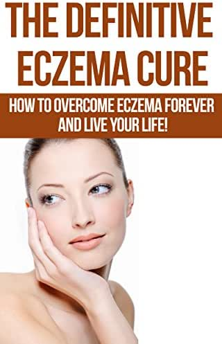 Eczema: The Definitive Eczema Cure - How To Overcome Eczema Forever And Live Your Life! (Skin Conditions, Dermatology, Eczema, Acne, Psoriasis, Skin Care, Essential Oils Book 1)