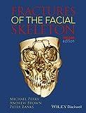 Fractures of the Facial Skeleton 2e