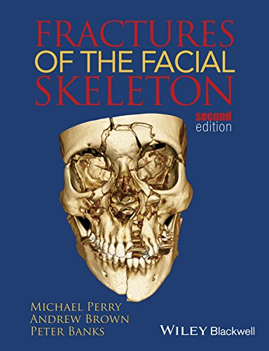 Fractures of the Facial Skeleton Pdf