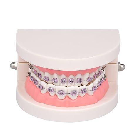 Anself Modelo de Ortodoncia con Soporte de Metal, Arco,Cable, Tubo ...